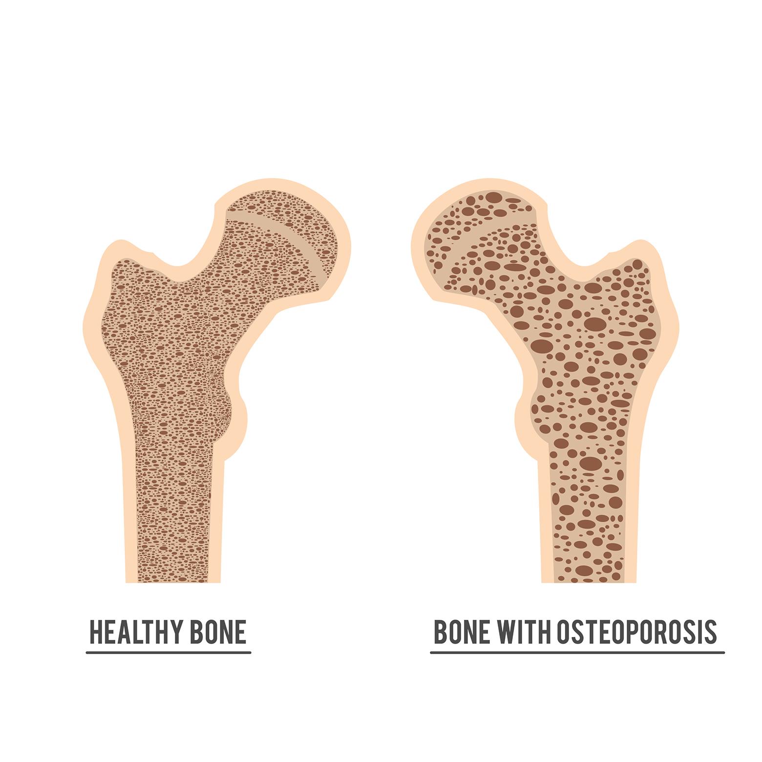 Friskt ben og ben med osteoporose